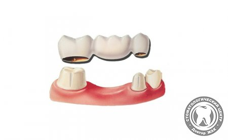 Типы и особенности мостовидных зубных протезов