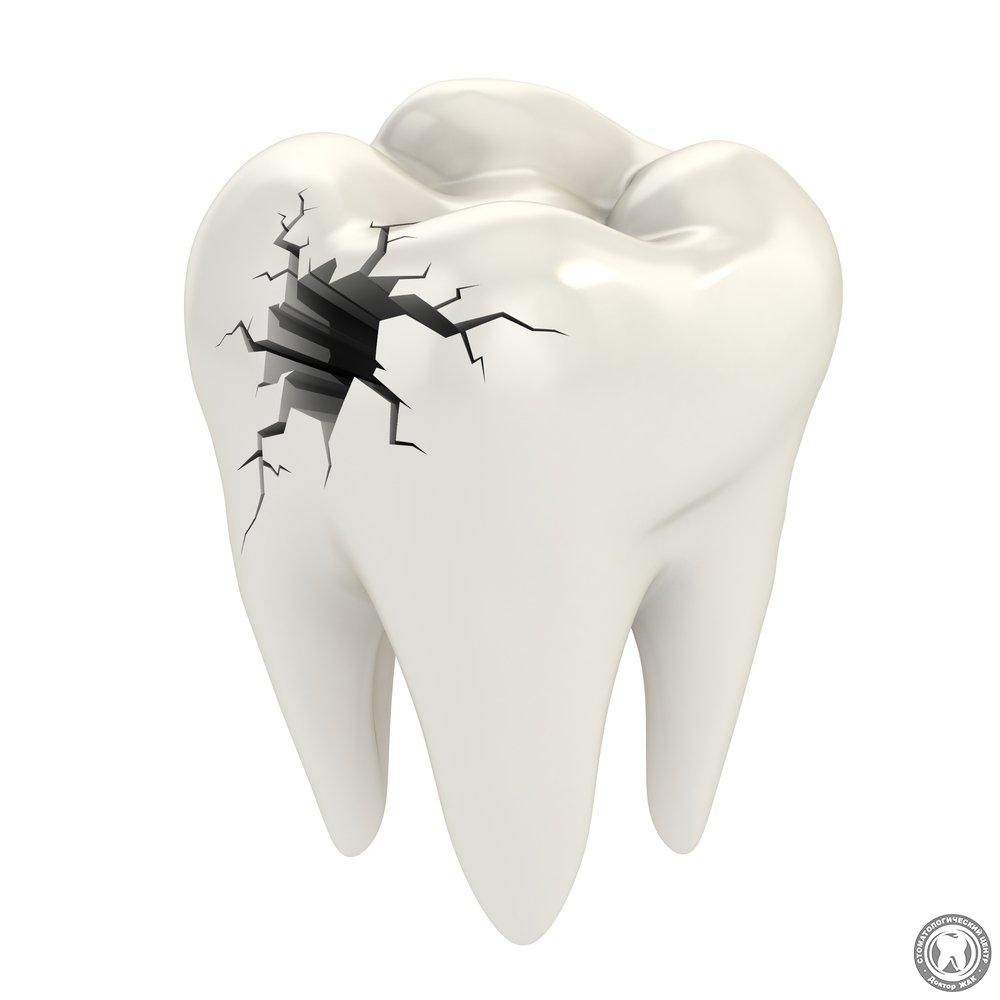 реставрация зубов винирами отзывы