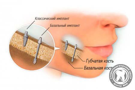 протез виниры для зубов и десен