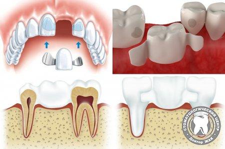 Преимущества адгезивных зубных протезов