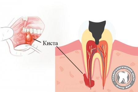 Удаление кисты зуба