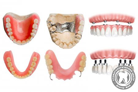 Какие зубные протезы лучше и дешевле
