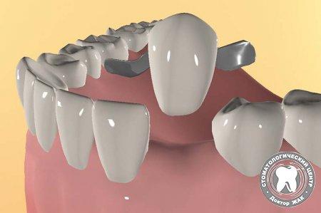 Адгезивные зубные протезы