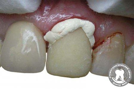 Cetkica i olovka za izbeljivanje zuba