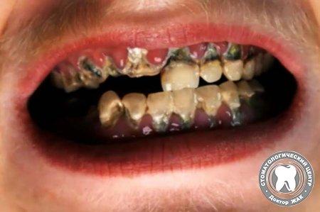 tainers for teeth с бесплатной доставкой на AliExpresscom