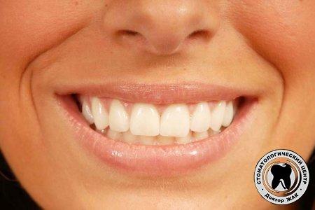 Ортопедия зубов