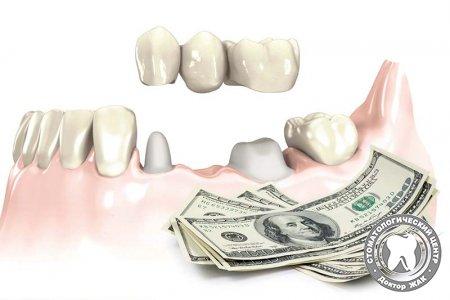 Сколько стоит зубной мост