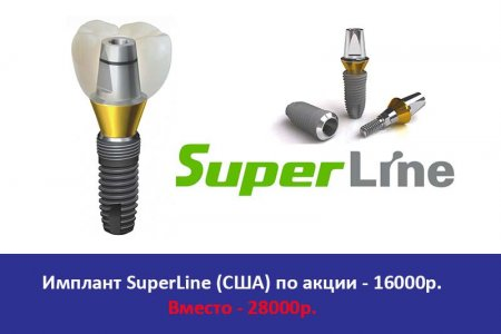 Имплант SuperLine (США)
